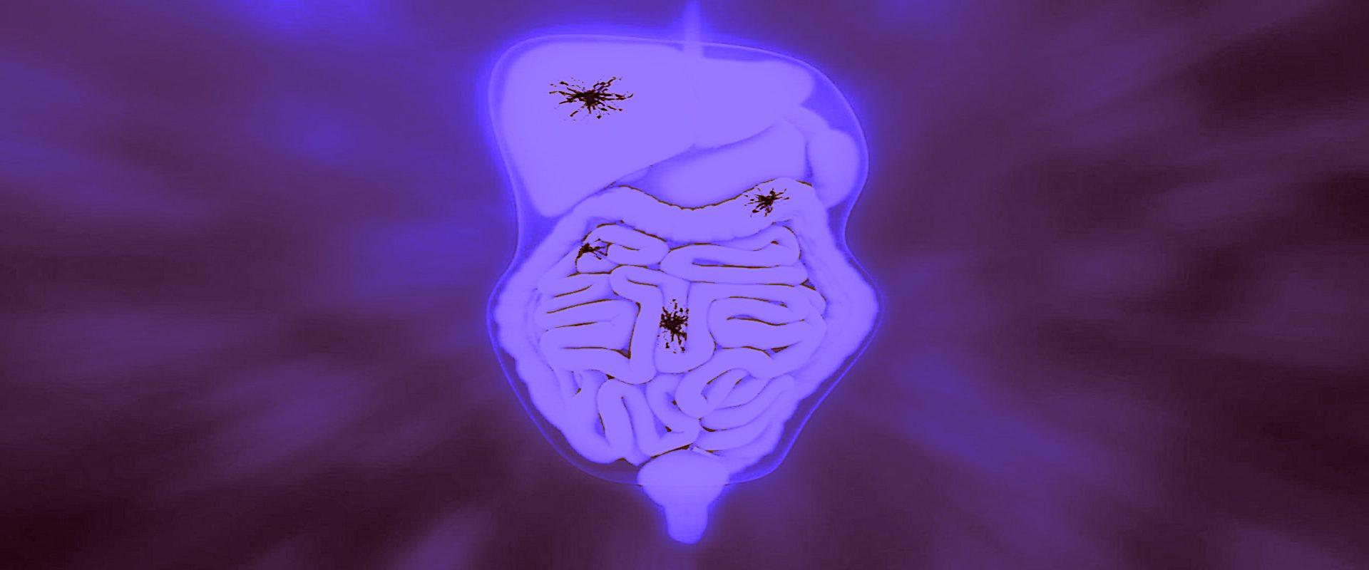Μεσοθηλίωμα Περιτοναίου